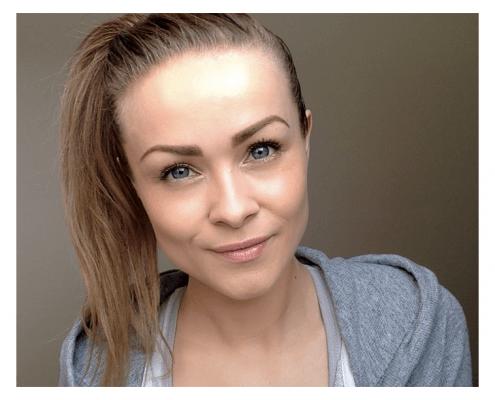 Uren hud? 10 tips til smuk hud med naturlig behandling | KarolinaKaersner.com